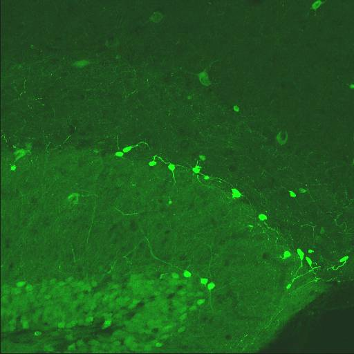 GENSAT Mouse Brain Atlas, expression of gene Rcan2 in the Hippocampus of adult mouse.