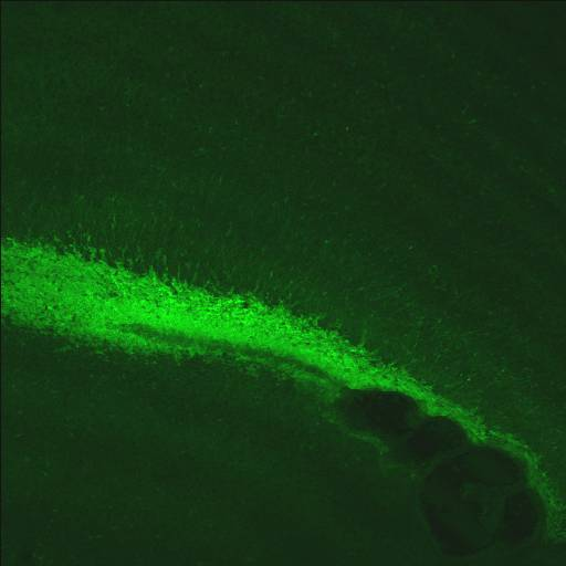GENSAT Mouse Brain Atlas, expression of gene Pax6 in the other of P7 mouse.