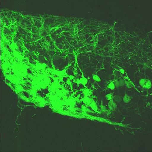 GENSAT Mouse Brain Atlas, expression of gene Calca in the Medulla of P7 mouse.