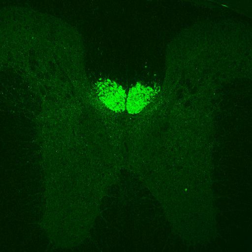 GENSAT Mouse Brain Atlas, expression of gene Crym in the Pyramidal tract of adult mouse. Fluorescent fibers in the pyramidal tract in the adult Crym-EGFP mouse spinal cord.