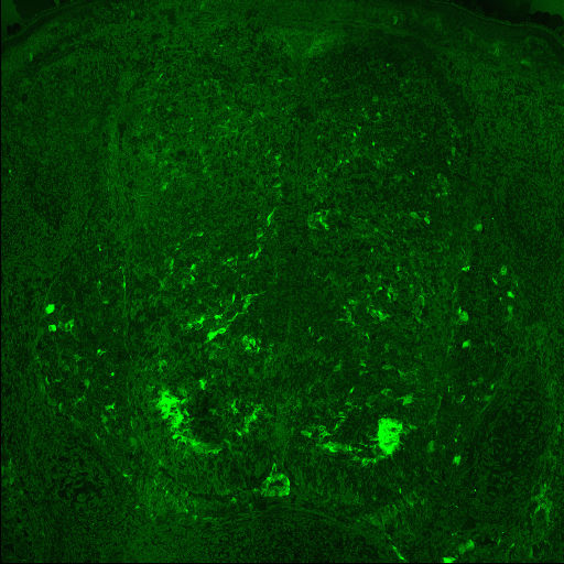 GENSAT Mouse Brain Atlas, expression of gene Ccnd1 in the Ventral Horn of E15.5 mouse.