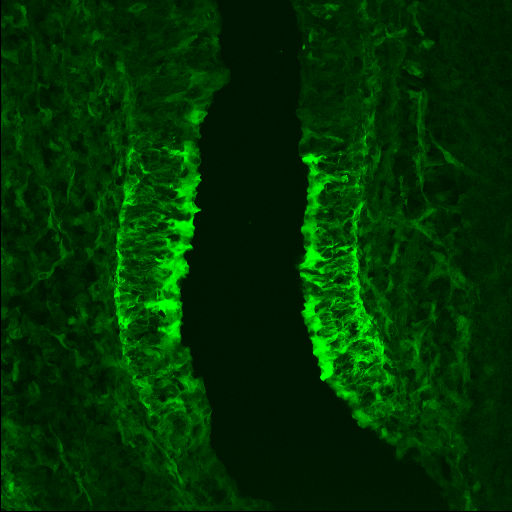 GENSAT Mouse Brain Atlas, expression of gene Enc1 in the Olfactory epithelium of E15.5 mouse. Ectodermal-neural cortex 1 (Enc1) is expressed in the developing olfactory epithelium.  Compare with E15.5 brightfield section 10.