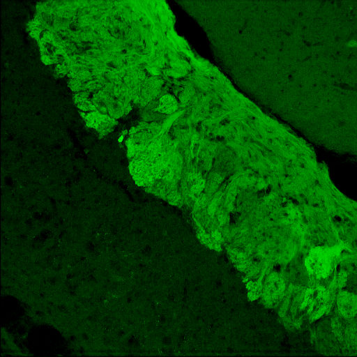 GENSAT Mouse Brain Atlas, expression of gene Vsnl1 in the Olfactory Bulb of adult mouse. Fluorescent fibers over the accessory olfactory bulb in an adult visinin-like 1-EGFP mouse.  Compare this confocal image with brightfield section 8.