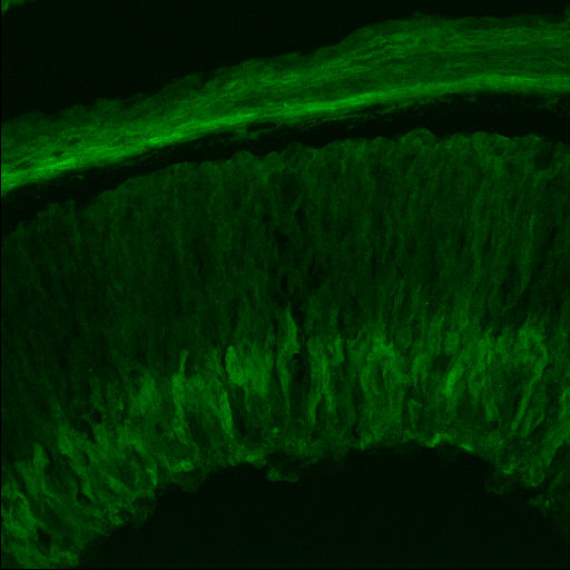 GENSAT Mouse Brain Atlas, expression of gene Sulf2 in the other of E15.5 mouse. Sulfatase 2 is expressed in the retina of the gestational day 15.5 mouse embryo.  Compare this confocal image with brightfield section 1.