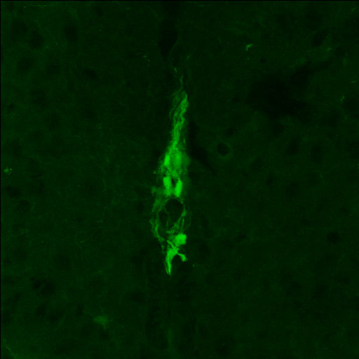 GENSAT Mouse Brain Atlas, expression of gene Gja1 in the Dorsal Horn of P7 mouse. Gja1 is expressed in cells located at the midline of the spinal cord.  The central canal (no signal) is located at the bottom of the photograph.  This image was obtained from a postnatal day 7 mouse.