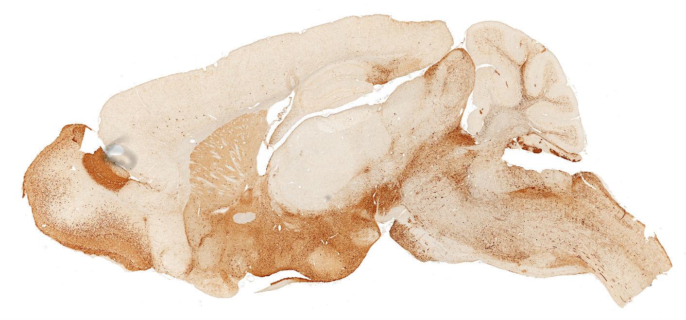 GENSAT Project at Rockefeller University, Mouse Brain Atlas, Image ...